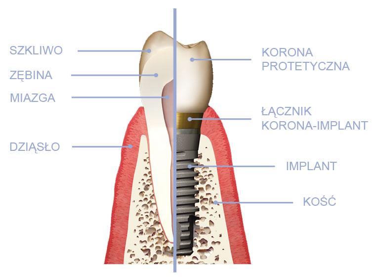 implanty stomatologiczne